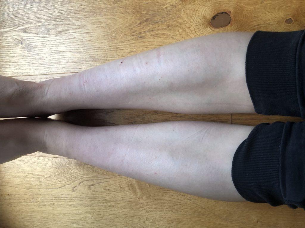 Foto po 3 měsících od nasazení léčby podle Mystického léčitele